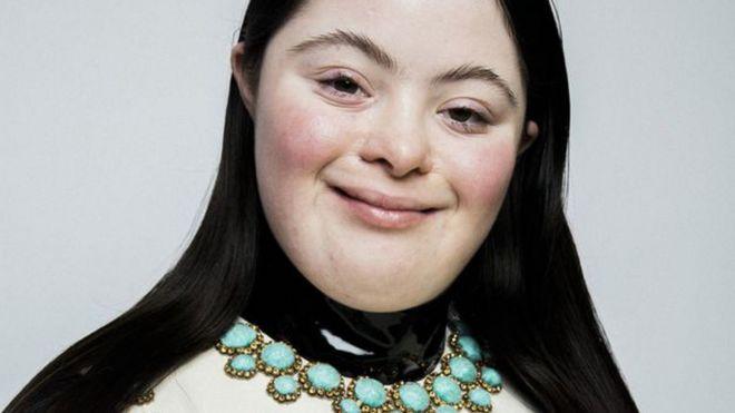 Quién es Ellie Goldstein, la primera modelo con síndrome de Down en aparecer en Vogue