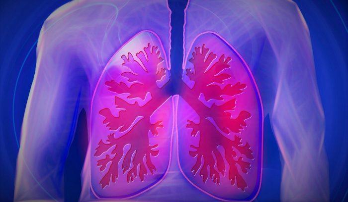 ¿Cuáles son los síntomas para reconocer la Fibrosis Pulmonar Idiopática?