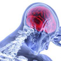 Uno de cada cuatro chilenos no reconoce los síntomas de un ataque cerebrovascular