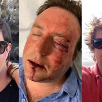 Caso Bulnes: víctima de violenta agresión interpuso querella contra José Alfonso Bulnes Concha y Enrique Searle Martínez y alista demanda civil