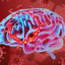 Neurociencias: los ciclos circadianos y el infarto cerebral