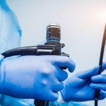 Hacia el año 2030 se proyecta importante aumento de casos de cáncer de colon en Chile