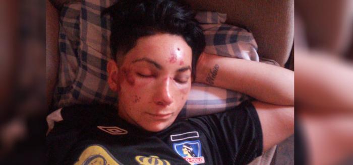"""""""Te vamos a matar por marimacho"""": en ataque lesbofóbico cuatro hombres golpean con un fierro a mujer hasta dejarla inconsciente"""