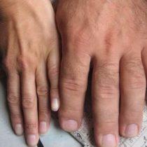 Acromegalia: la enfermedad poco frecuente que modifica rasgos físicos y cuyo diagnóstico puede tomar hasta 10 años