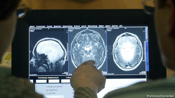 La ayahuasca abre nuevas esperanzas para la cura del Alzheimer