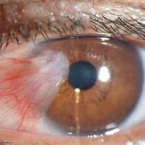 Encuentran anomalías oculares en algunos casos graves de covid-19