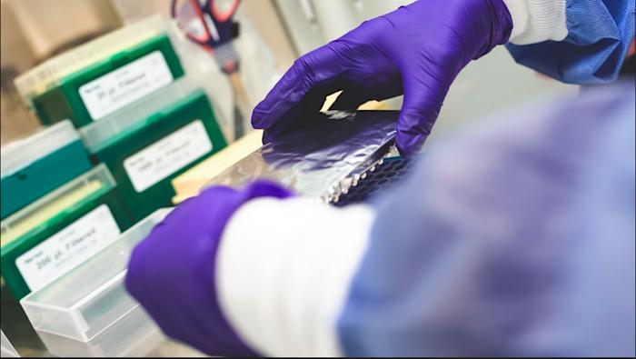 Más de 840 mil PCR han sido analizados por los laboratorios universitarios
