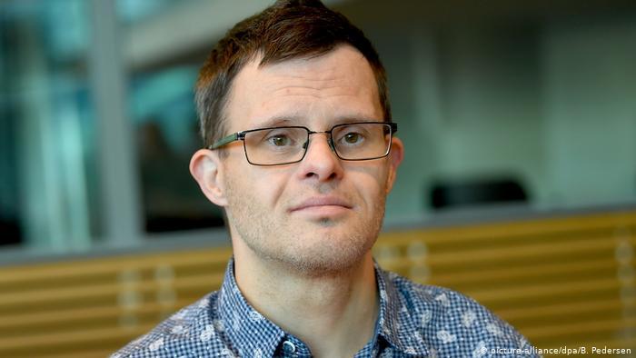 Estudio: personas con síndrome de Down son genéticamente susceptibles a Covid-19