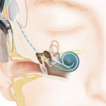 Día del implante coclear: un oído biónico para chilenos con pérdida auditiva