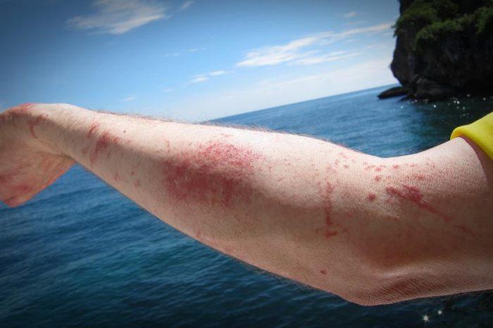 Psoriasis: la enfermedad que complica a quienes la padecen en el verano