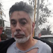 Candidato a alcalde de Lo Espejo denuncia agresión y apunta a adherentes de edil Miguel Bruna