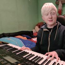 Día Internacional de la Sensibilización sobre el Albinismo: viviendo entre el desconocimiento y los prejuicios