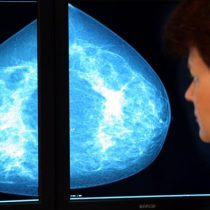 Diagnóstico del cáncer con examen de sangre: ¿es realista?
