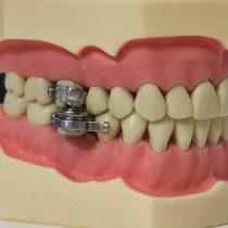 Para combatir la obesidad: dispositivo evita que la boca se abra más de 2 milímetros