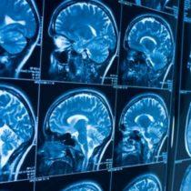 Neurocovid-19: n 15% de las personas contagiadas por coronavirus presentan sintomatología neuropsicológica