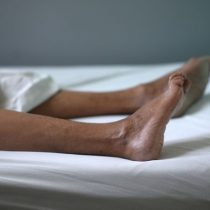 Síndrome de Guillain-Barré: el trastorno neurológico que afecta a algunas personas vacunadas contra el coronavirus
