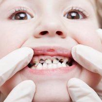 Demencia y ataques cardíacos: dientes en mal estado pueden producir graves enfermedades