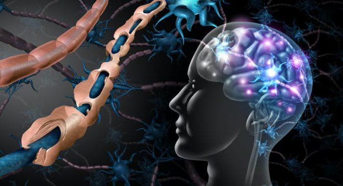 ¿Regeneración en esclerosis múltiple? ¡Sí se puede!