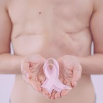 Un nuevo fármaco podría elevar la supervivencia del cáncer de mama HER2 positivo al 95 %