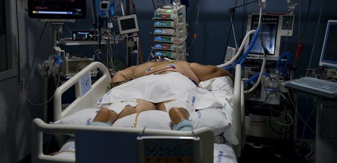 Covid-19: por qué la obesidad es un factor de riesgo